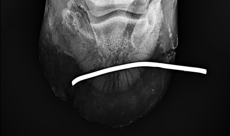 A portable radiograph was used to get an x-ray image of the injury.