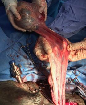 Marquis's undescended testis is removed.