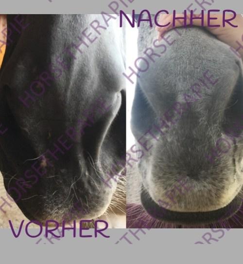 Craniosacral - Gesichtslähmung_vorher&nachher