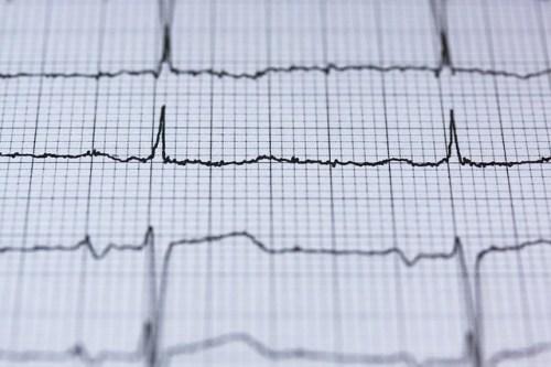 Electrocardiograma, ¿qué es y para qué sirve?