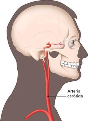 Arterias carótidas