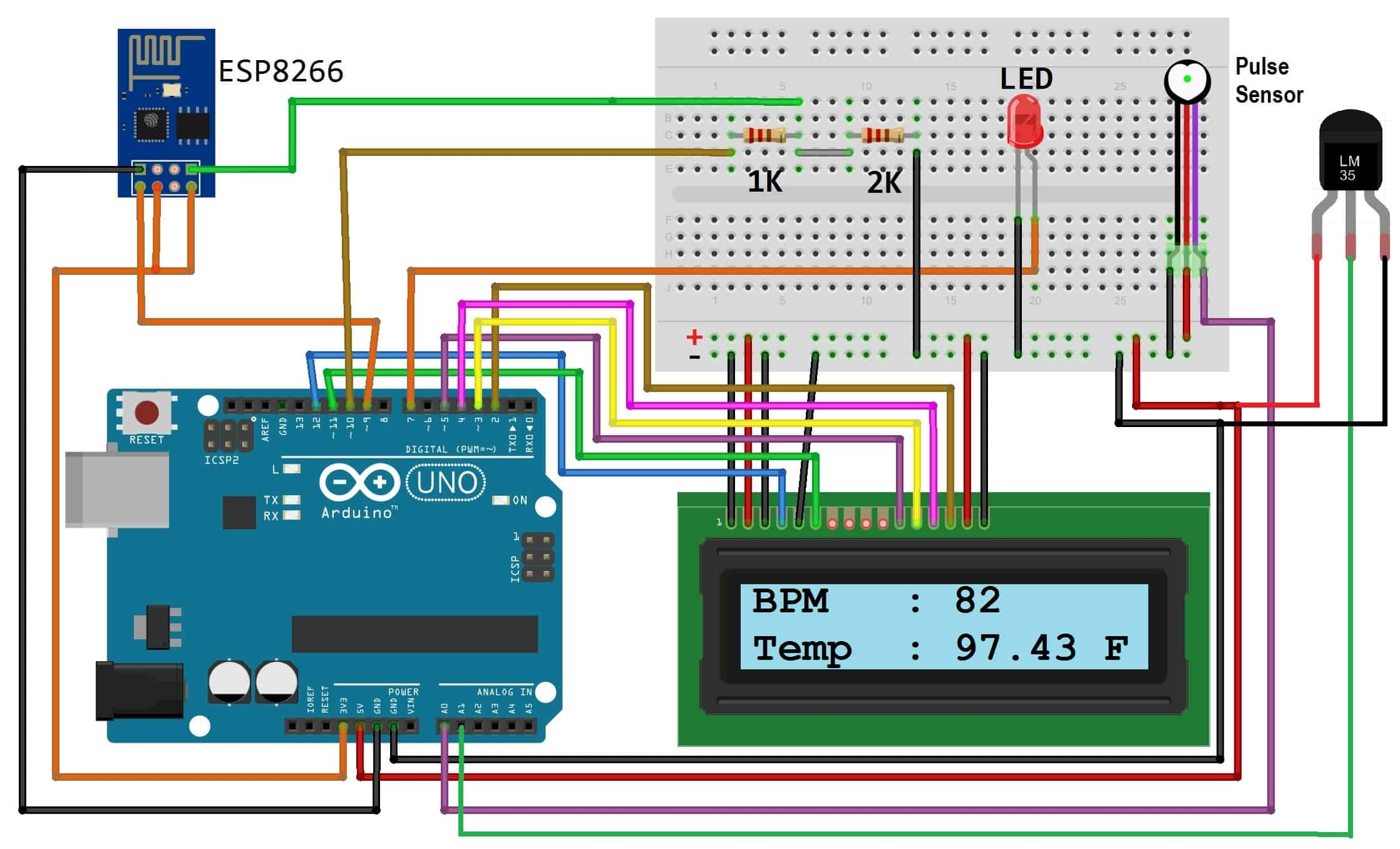 Iot Based Patient Health Monitoring System Using Esp8266 Arduino Temperature Sensor Circuit Diagram Connect Pulse Output Pin To A0 Of And Other Two Pins Vcc Gnd 2 Lm35 A1