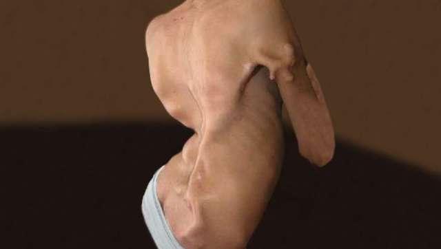 Progressive fibrodysplasia