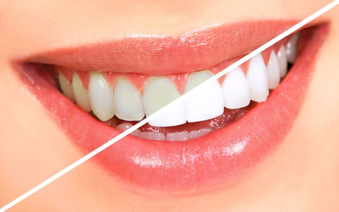 before and after sparkling crystal white teeth
