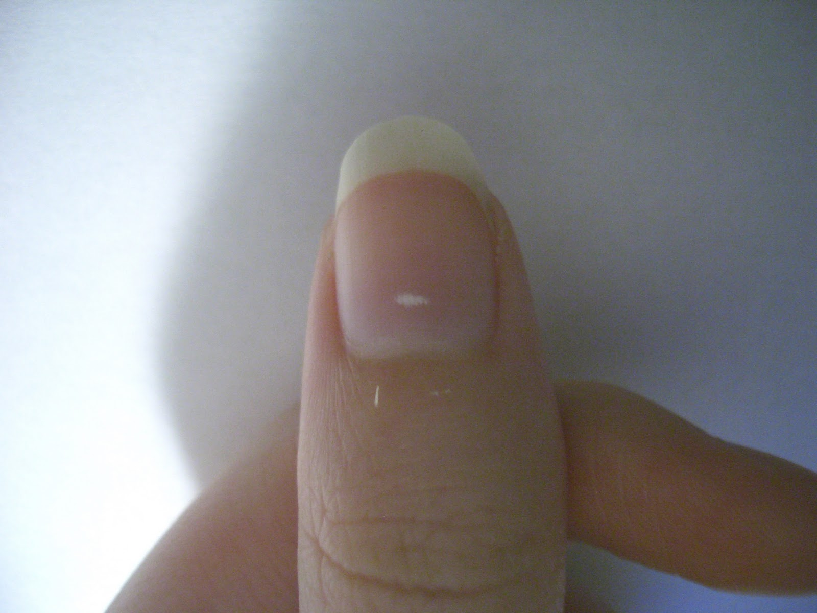Why are there White Spots on Fingernails
