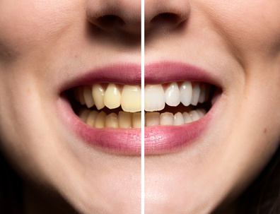 9 Tips for Removing Tartar & Plaque from Teeth at Home Fast