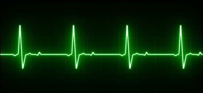 What Is An Ekg And How Does It Work In The New Apple Watch