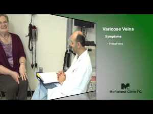 varicose vein treatment