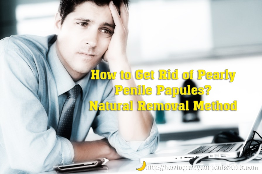 How to Get Rid of Pearly Penile Papules Natural Removal Method