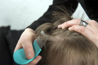 Head Lice and Nits Treatment