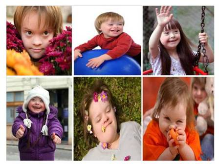 21 de marzo: Día Mundial del Síndrome de Down