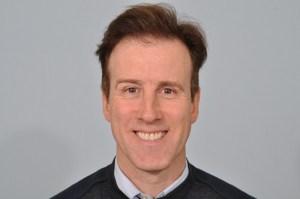 Anton du Beke hair transplant