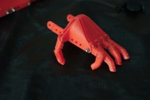 A child's hand, waiting to be attached to the arm brace.