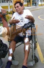 El cantante Alonso Nizama Condoy (54) sufrió cortes y contusiones en piernas y brazos. Tuvo que ser retirado en silla de ruedas.