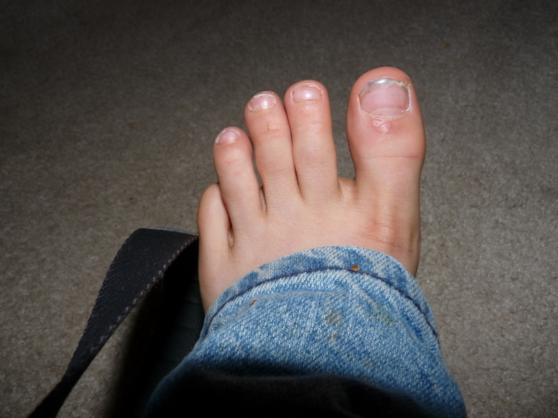picture of foot