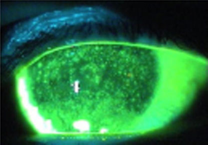 severe dry eye