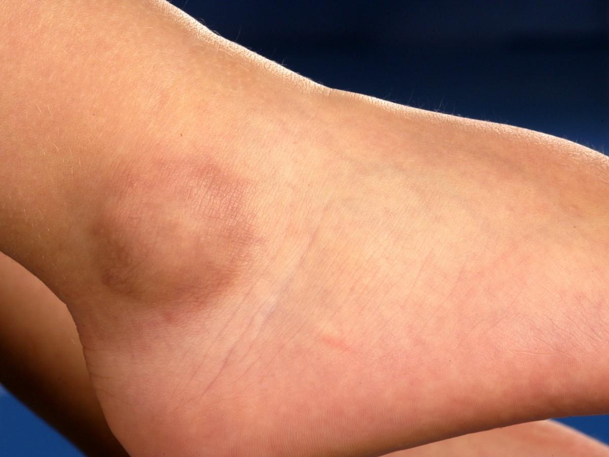 Granuloma Annulare Natural Cure