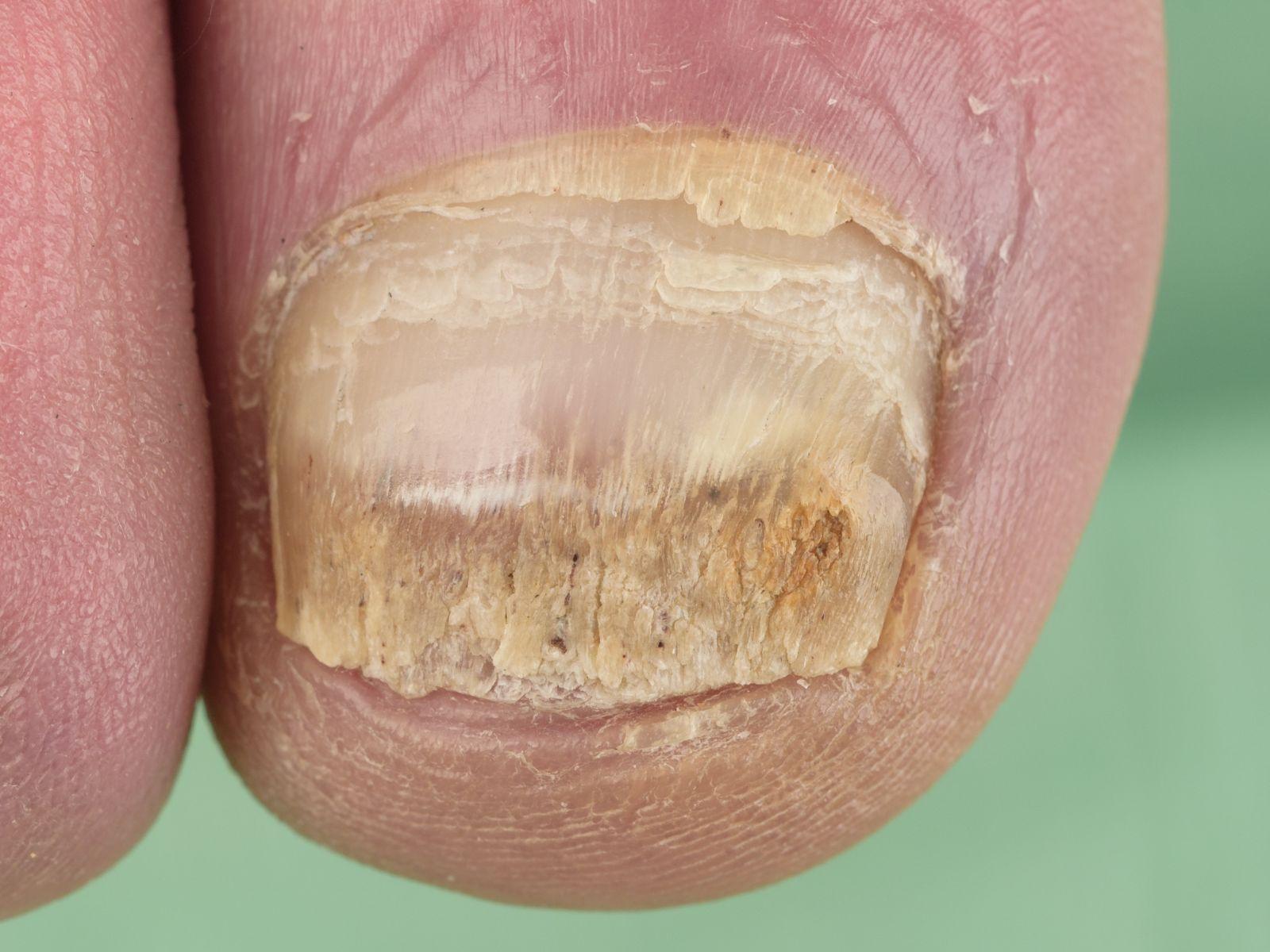 Afbeeldingsresultaat voor ouderen voeten