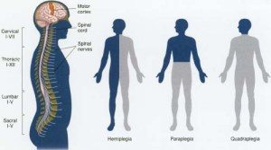 Paralysis  body, causes, What Is Paralysis?