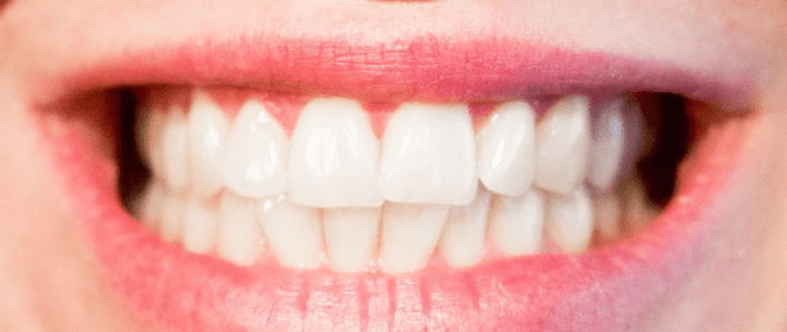 Important Factors to Consider When Choosing a Cosmetic Dentist