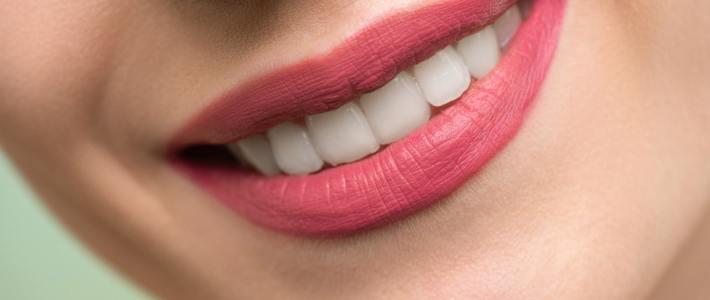 How to Achieve a Million Dollar Smile
