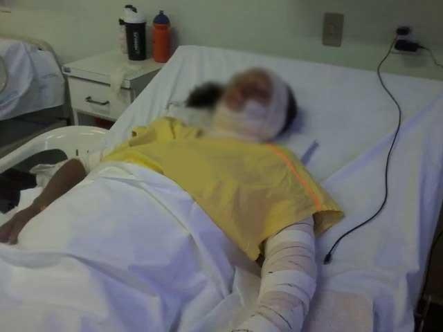 تین بچوں کی ماں کو پٹرول چھڑک کر آگ لگا دی گئی؛ قصور