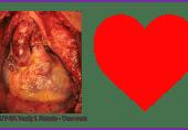دل کی بیماری کی خاموش علامات اور احتیاط
