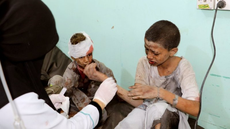 A doctor treats children injured by an air strike in Saada, Yemen (9 August 2018)