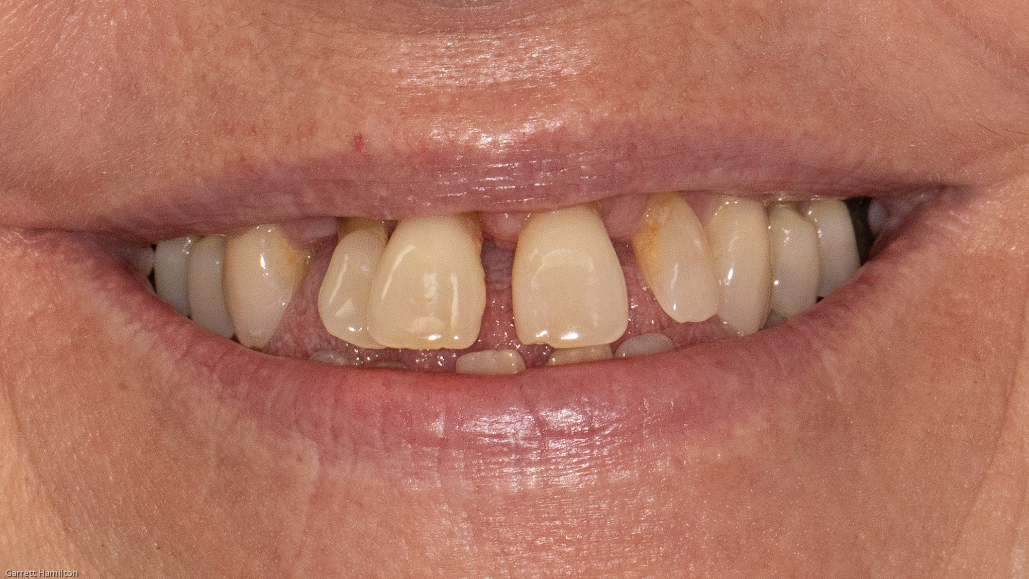 Jefferson City Dentist - tooth filling - composite tooth filling - front tooth filling, affordable dentures, affordable dentures columbia mo jefferson city dentist - columbia mo dentist - dental implants