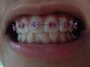 Hot pink braces! :D