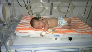 صورة الطفل السوري بعد ولادته بساعات ... وقد ولد بعد وفاة امه نتيجة القصف وبقي عدة ساعات في رحمها