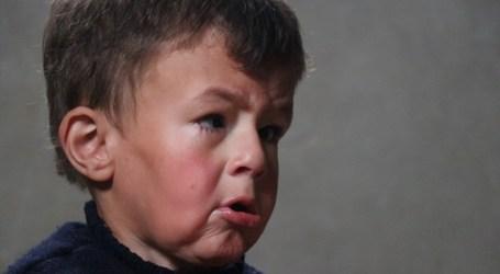 طفل مهجر من الغوطة مصاب بمرض الشيخوخة المبكرة يعاني أوضاع صعبة