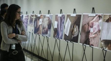 اغتصاب وتعذيب.. العفو الدولية تندد بالانتهاكات التي يتعرض لها اللاجئين العائدين إلى سوريا