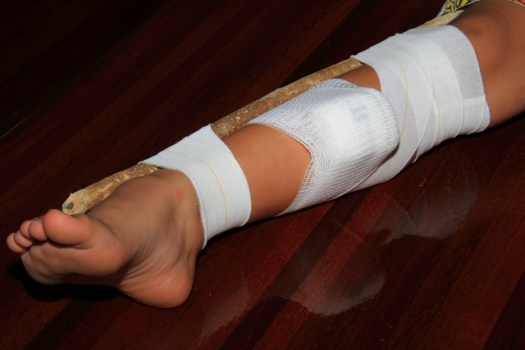 Image result for covering a snake bite wound