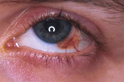 melanoma congiuntivale (Fonte: uveiti.it)