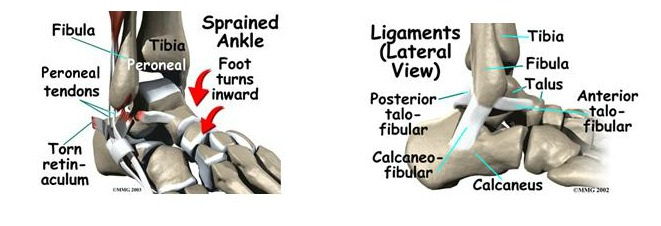Lateral Ankle Sprain 3