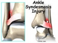 Ankle sydesmosis