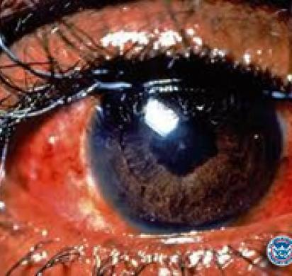 ICE highlights dangers of illegal decorative contact lenses