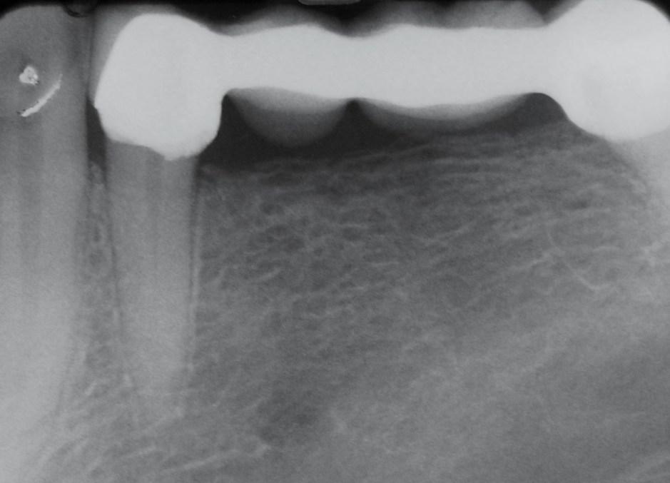 Endodontiki Therapeia 1