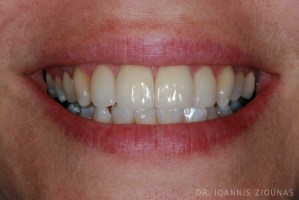 PORCELAIN VENEERS-after1_site