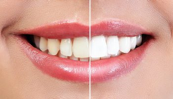 Demonstration of dental whitening result, before and after proce
