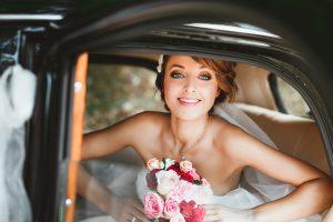 teeth whitening for wedding