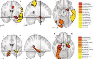 brain genetics 2021