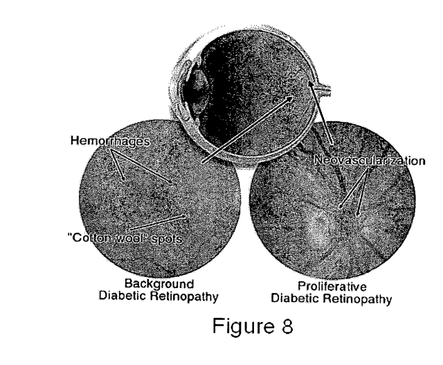 Patent intraocular lenses