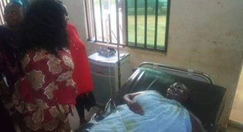 (Photos) Disgruntled Anambra Man baths wife with acid for demanding a divorce