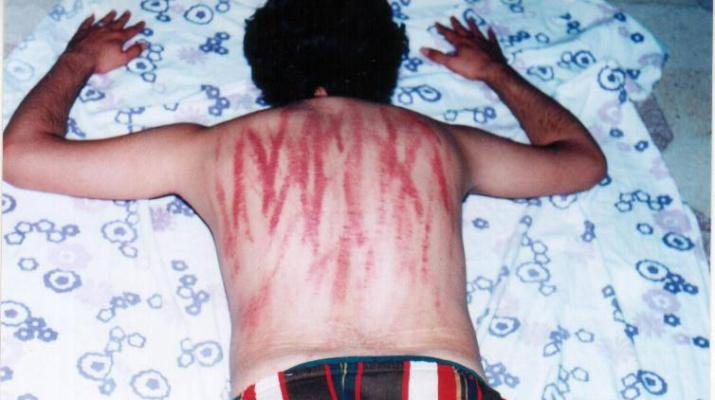 ifmat - Iran Wave of floggings, amputations and other vicious punishments1