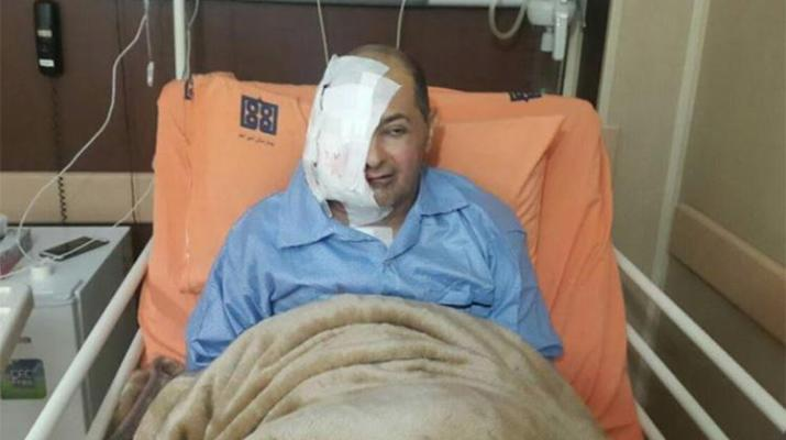 ifmat - Journalist Loses Eye and Part of His Face, Untreated While in Prison
