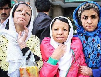ifmat - After burn victims denied compensation because they are girls