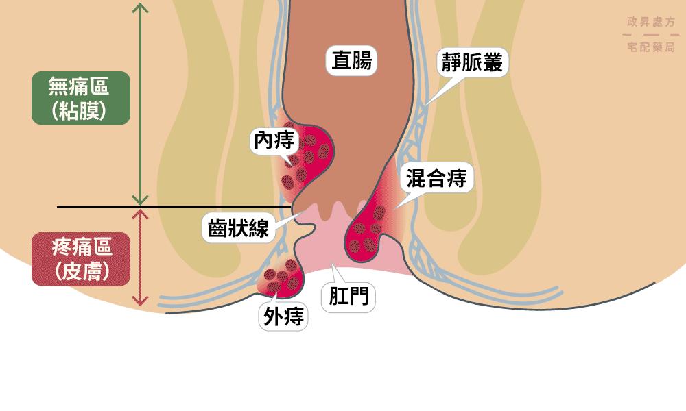 內痔、外痔、混合痔在肛門的分布位置