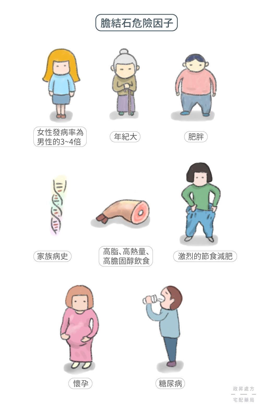 八種膽結石的危險因子